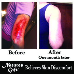 Nature's Gift Relieves Skin Discomfort